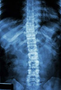 X-ray of a normal human back.